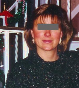 Woman with mild rosacea