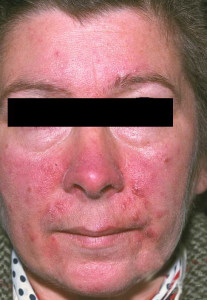 Woman with severe rosacea