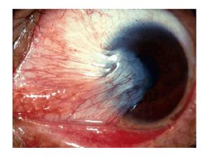 Advanced Ocular Rosacea Pterygium